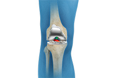 ACL Preserving Total Knee Replacement