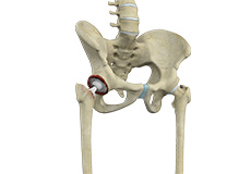 Computer-Navigated Total Hip Replacement